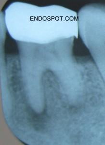 Primary Apical Periodontitis