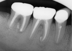 The three year review PA shows good healing of the apical lucencies. This simple and inexpensive treatment has allowed this patient to keep their tooth in function in the short term. I will keep recalling the patient.