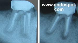 Endodontic radiography