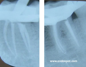 The image on the right appears to show one distal canal, but the mesial tube shift reveals two separate canals.