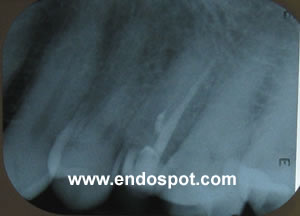 Untreated Palatal Canal