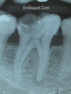 Diagnosis of Apical Periodontitis