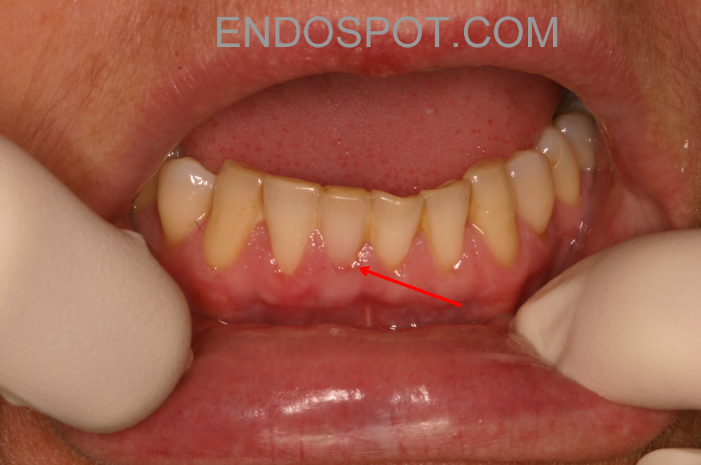 Invasive Cervical Resorption Pink Spot