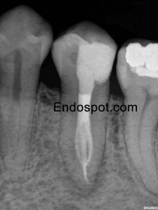 Premolar with unusual anatomy