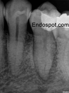 Lower Premolar with unusual anatomy