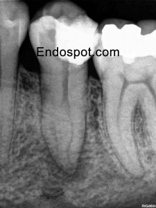 Lower premolar AP 2