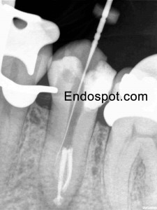 Unusual Anatomy in Premolar