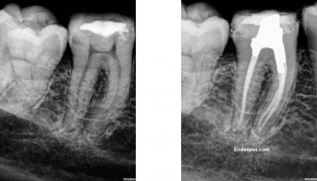 Conservative endodontic access in lower molar
