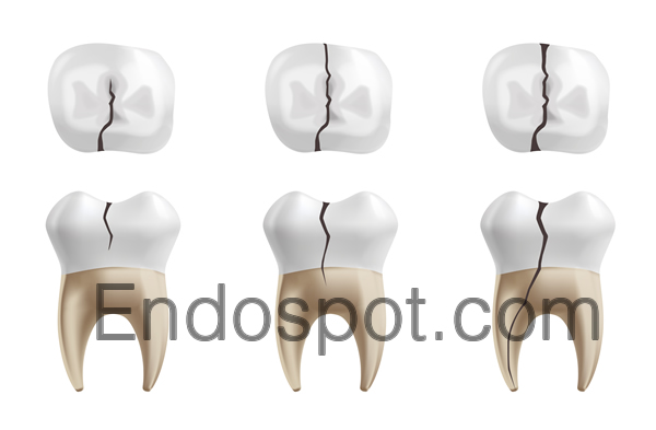 Endospot cracked tooth